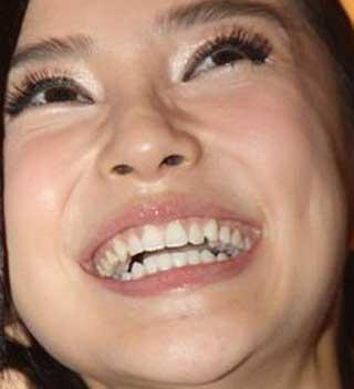 アンジェラベイビー 歯