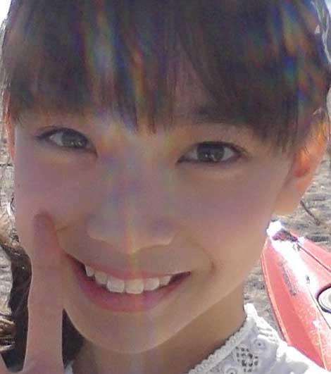後藤萌咲 前歯の写真