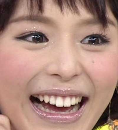 平野綾 前歯の写真
