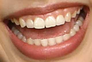 梶原麻莉子 前歯の写真