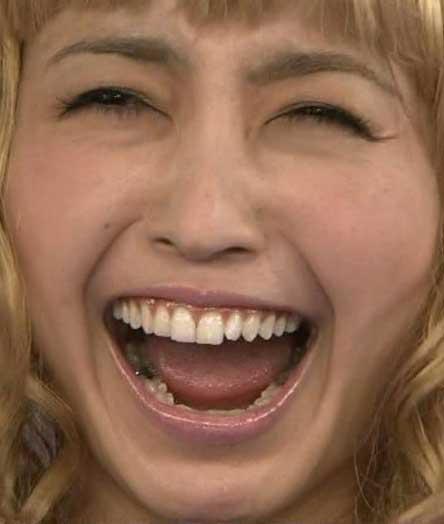 片瀬那奈 歯茎