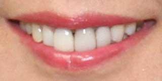 小林浩美 前歯の写真