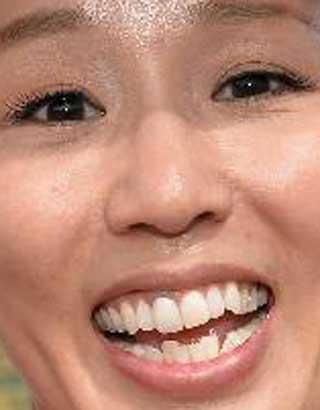 にしおかすみこ 前歯の写真