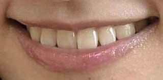 谷口めぐ 前歯の写真