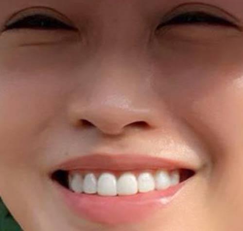神崎恵 差し歯
