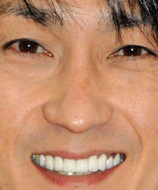 福田こうへい 前歯の写真
