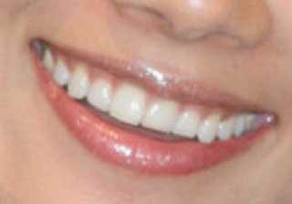 小池栄子 前歯の写真
