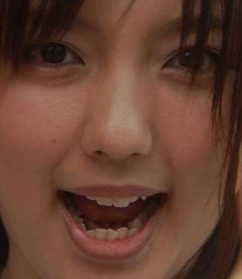 真野恵里菜 下の歯の歯並び