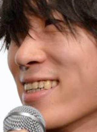 増川弘明 前歯の写真
