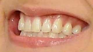 中越典子 前歯