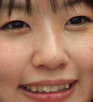 つぼみ 前歯の写真