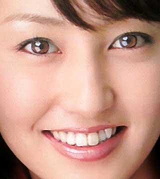 矢田亜希子 現在の前歯の写真