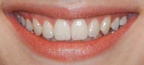 エマ・ロバーツ 前歯の写真