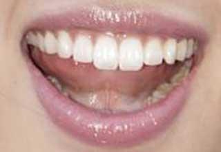 青山めぐ 前歯の写真