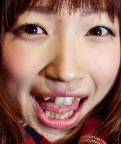 有明ゆな 歯並び