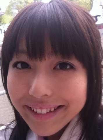 浅倉杏美 歯