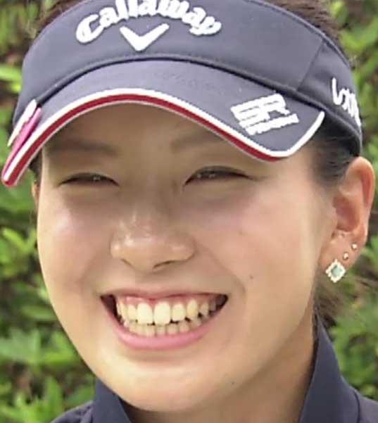 女子プロゴルファー 藤田光里 歯