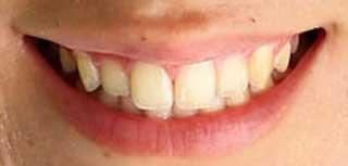 藤田光里 前歯の写真