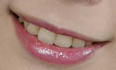 佳苗るか 前歯の写真