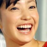菅野美穂さんの前歯や歯並び(ガミースマイル)