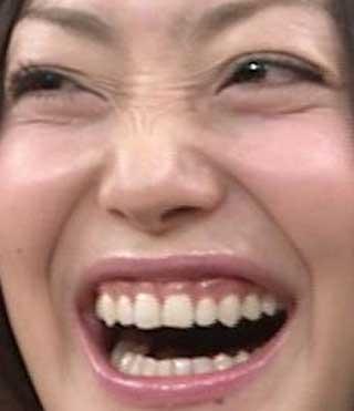 菅野美穂 前歯の写真