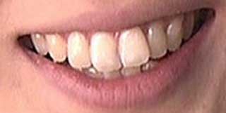 加藤真輝子アナ 前歯や歯並び