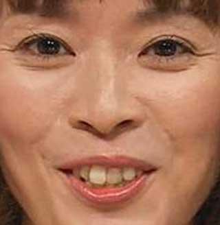 川本真琴 前歯の写真