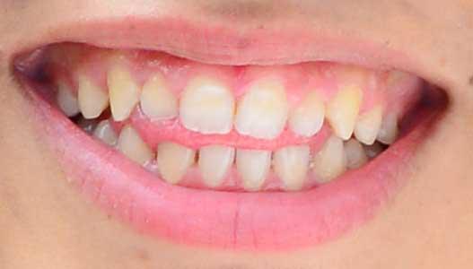 けみお 前歯の写真