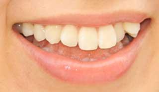 木谷有里 前歯の写真
