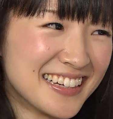 近藤麻理恵 前歯の写真
