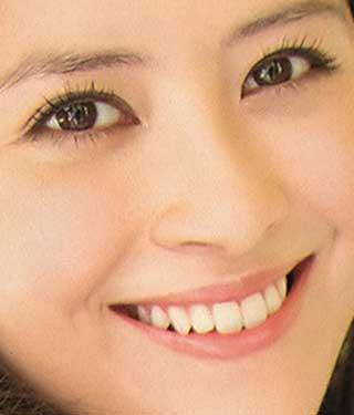 ラフルアー宮澤エマ 前歯の写真