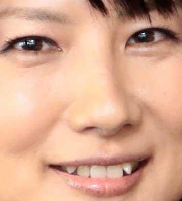 中江有里 前歯の写真