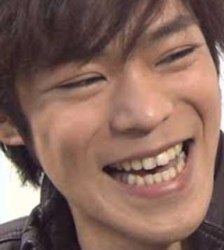 小野賢章 前歯の写真