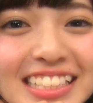 齋藤飛鳥 八重歯の写真