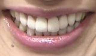 尾崎小百合 さゆり 前歯の写真