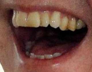 関根勤 前歯の写真