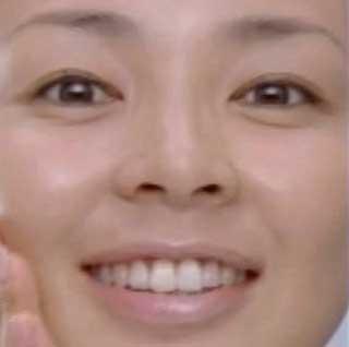 SHIHO 前歯の写真