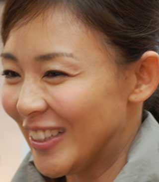 SHIHO 前歯の画像