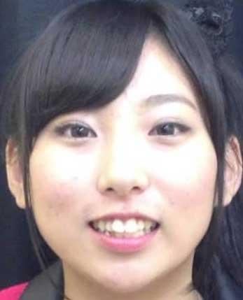 玉川桃奈 前歯の写真