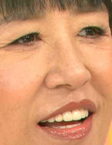 和田アキ子 前歯の写真