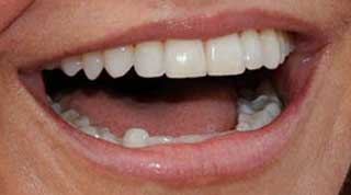 キャメロン・ディアス 前歯の写真
