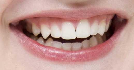 エル・ファニング 前歯の写真