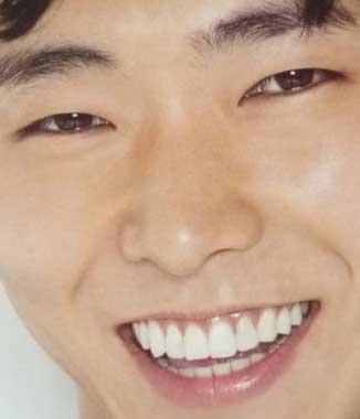 柄本佑 前歯の写真