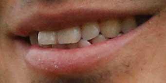 五郎丸歩 前歯の写真