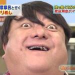 彦摩呂さんの前歯や歯並び