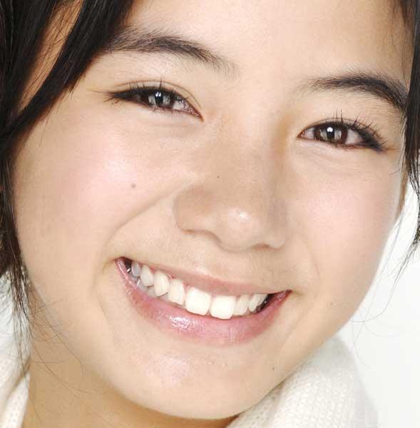 池田エライザ 13歳 銀歯