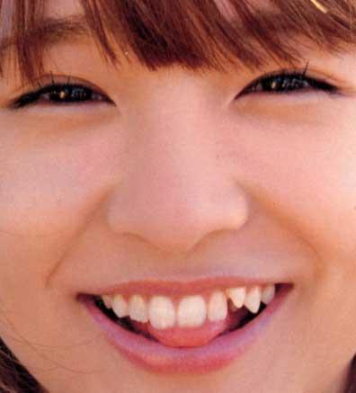 加護亜依 八重歯
