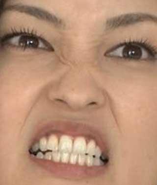 黒木メイサ 歯