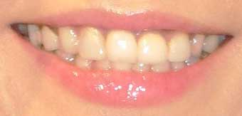 松本伊代 差し歯の写真