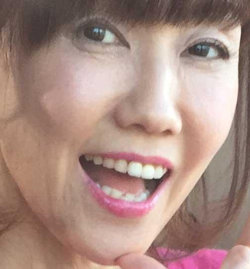 松本伊代 前歯